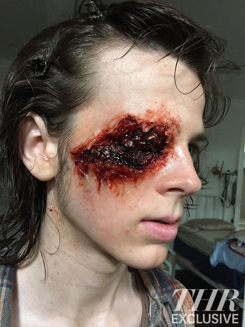 carl wound